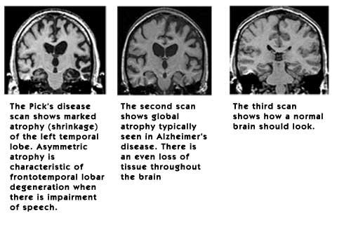 Alzheimer's MRI