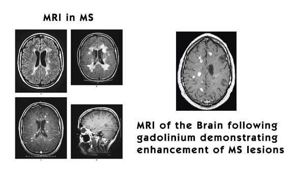 East Portland Neurology Mri